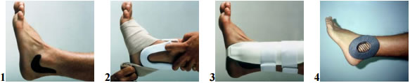 Ankle sprain compression Stages